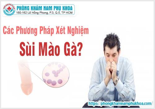 cac phuong phap xet nghiem sui mao ga