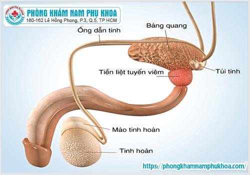 nhung phuong phap dieu tri viem tuyen tien liet