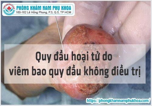chi phi kham va dieu tri viem bao quy dau hien nay
