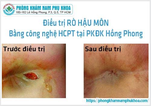 Trước và sau điều trị rò hậu môn tại PKĐKHồngPhong