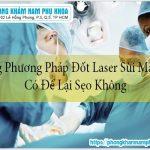 Dùng Phương Pháp Đốt Laser Sùi Mào Gà Có Để Lại Sẹo Không