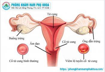 Viêm lộ tuyến cổ tử cung độ 1 điều trị như thế nào