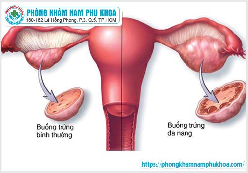 Buồng trứng đa nang gây trễ kinh
