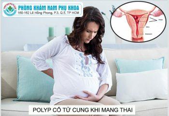 polyp-co-tu-cung-khi-mang-thai