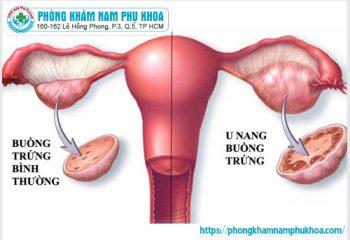 Nguyên nhân phụ nữ dễ bị bệnh u nang buồng trứng