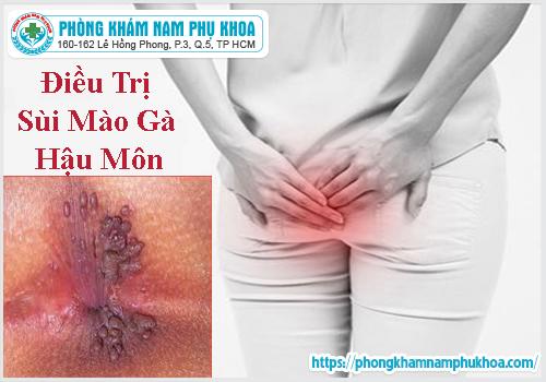 phuong-phap-dieu-tri-sui-mao-ga-hau-mon-hieu-qua-hien-nay