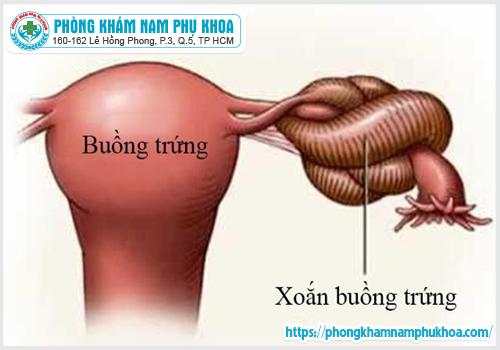 u-nang-buong-trung-xoan-la-benh-gi-co-nguy-hiem-khong